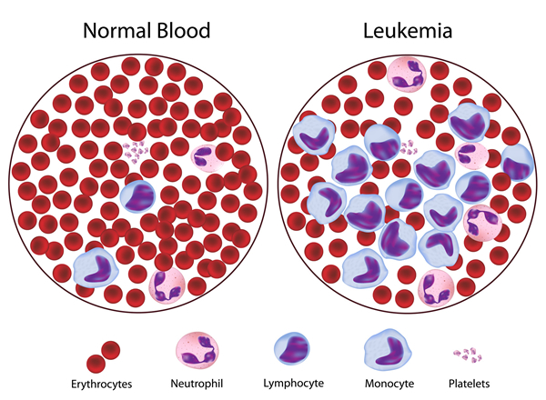 Causes of Leukemia: What Causes Leukemia?