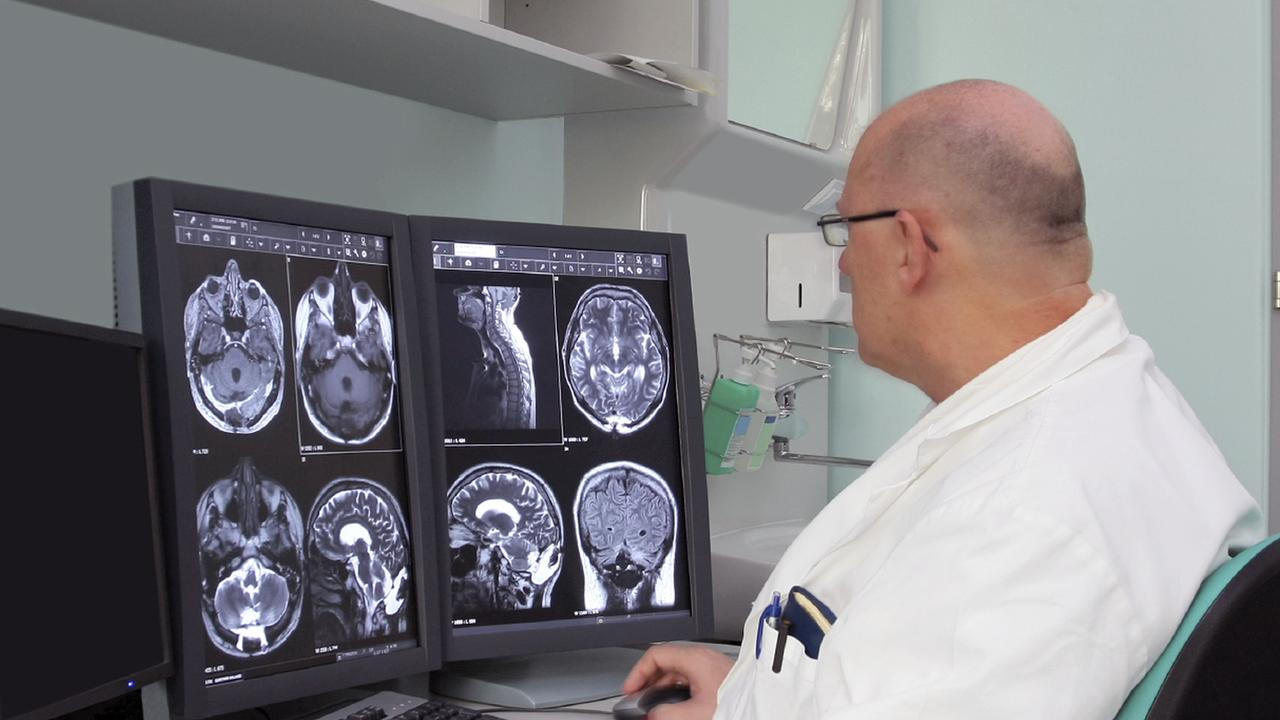 MS Diagnosis: Multiple Sclerosis Diagnosis and Testing