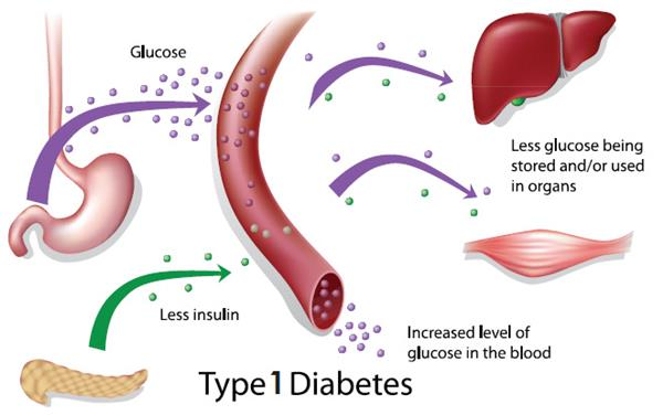Type 1 Diabetes Causes: What Causes Type 1 diabetes?
