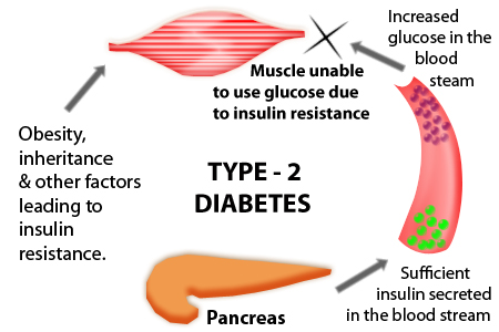 Type 2 Diabetes Causes: What Causes Type 2 diabetes?
