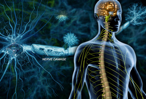 What is Multiple Sclerosis? An Overview