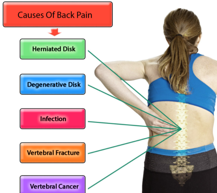 Causes of Back Pain: What Causes Back Pain?