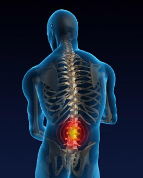 Back Pain Symptoms: Signs and Symptoms of Back Pain