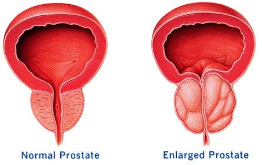 Causes of Prostate Cancer: What Causes Prostate Cancer?