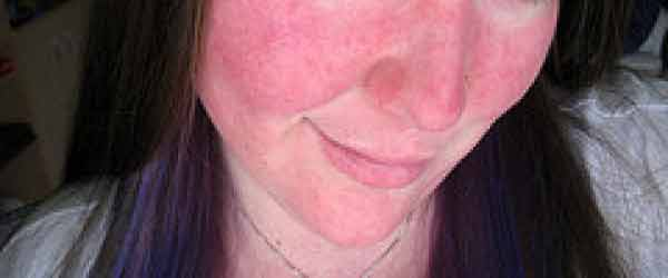 Sunburn Symptoms: Signs and Symptoms of Sunburn