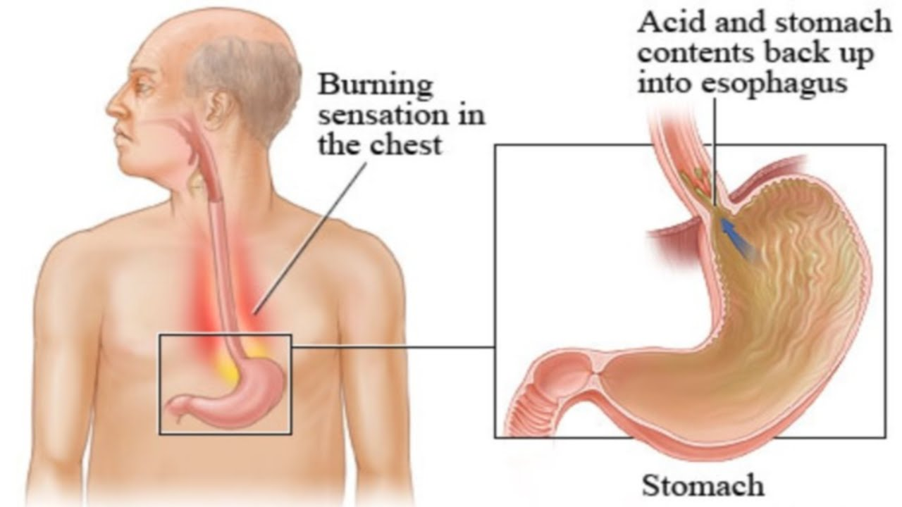 Signs and Symptoms of Acid Reflux