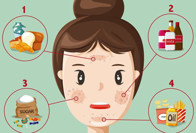 11 Top Foods That Can Cause Acne