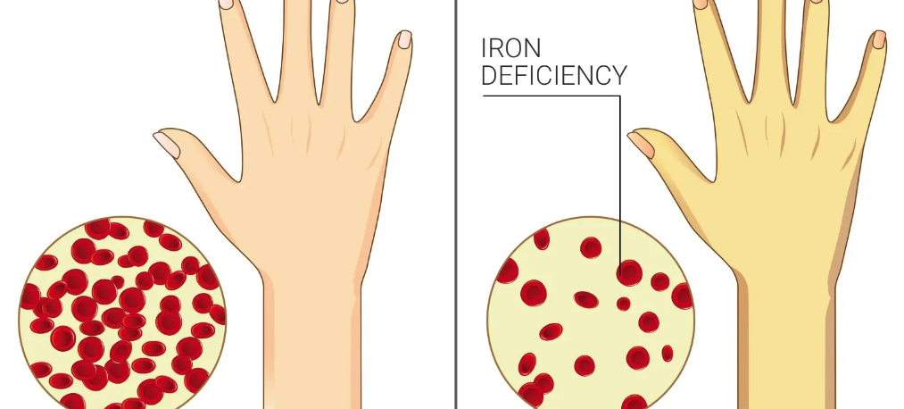 12 Signs and Symptoms of Iron Deficiency