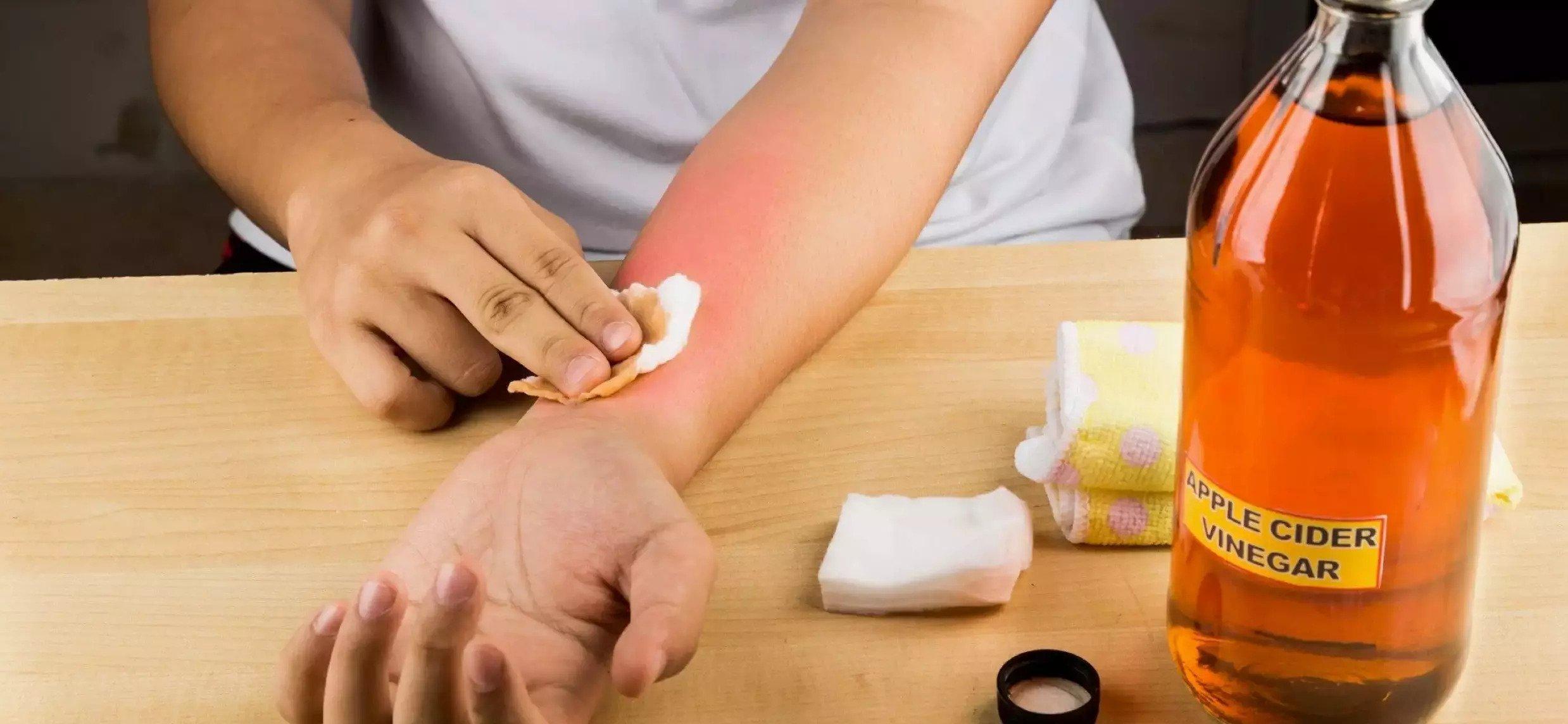 Vinegar for sunburn: Is Vinegar good for sunburn relief?