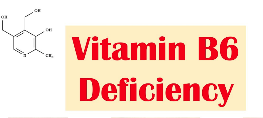 5 Signs and Symptoms of Vitamin B6 Deficiency