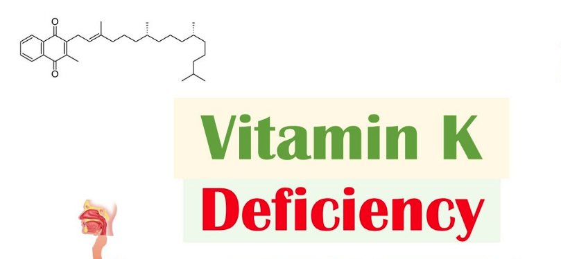 7 Signs and Symptoms of Vitamin K Deficiency
