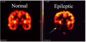 Epilepsy Diagnosis