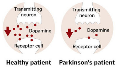 Parkinson's disease causes