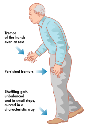 symptoms and treatment of parkinsons disease Parkinson's disease affects the nerve cells in the brain that produce dopamine parkinson's disease symptoms include muscle rigidity, tremors, and changes in speech and gait after diagnosis .