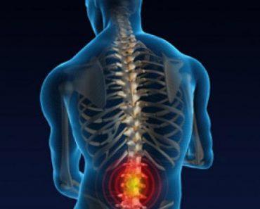 Back Pain Symptoms