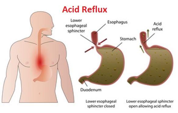 Acid Reflux Causes
