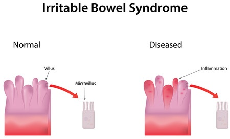 Irritable Bowel Syndrome Causes