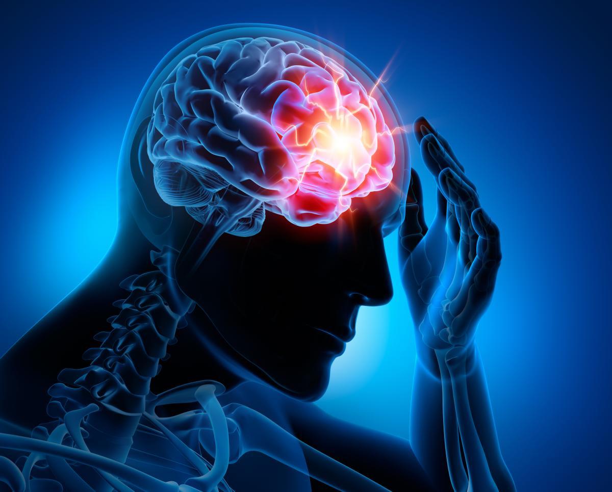 Epilepsy Center